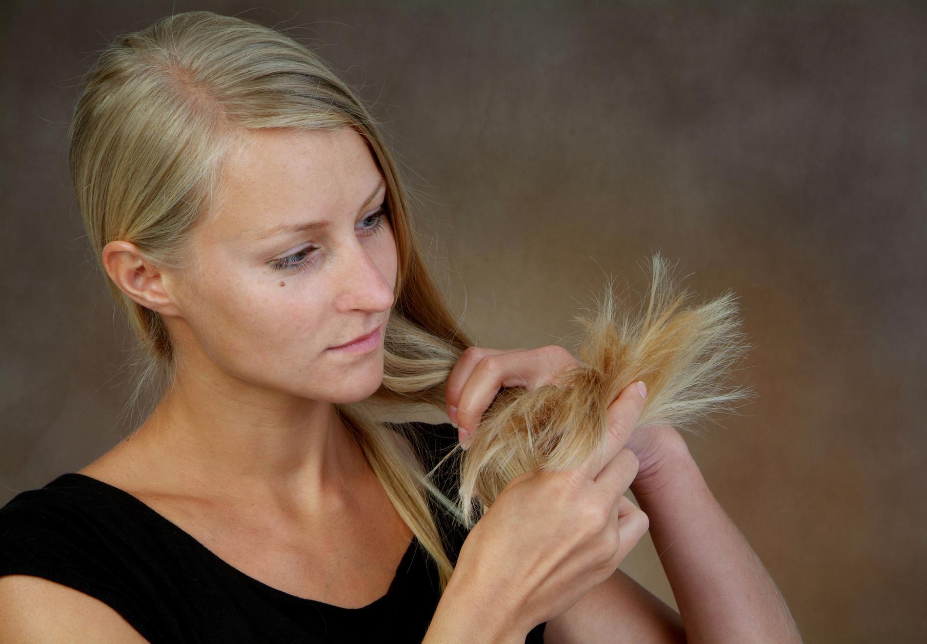alopecie-femme