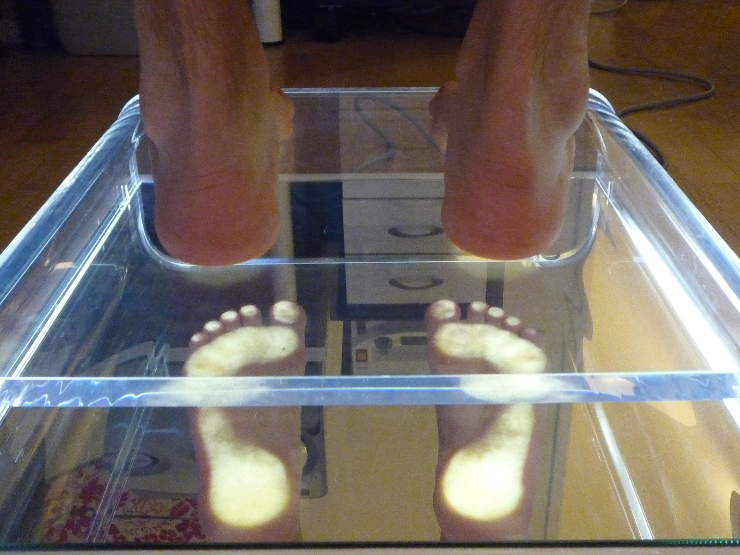 analyse statique pied