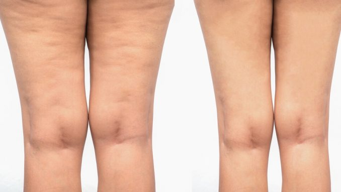contrer cellulite
